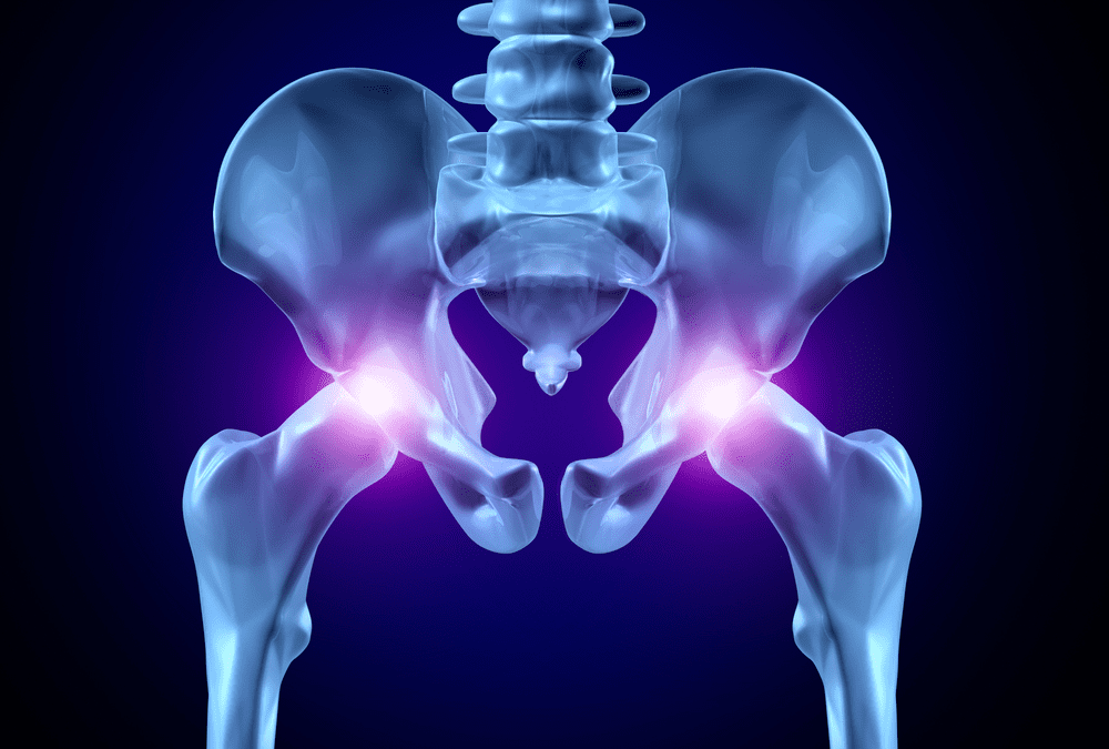 9 Signs You Shouldn't Ignore Your Hip Pain (Seek Relief Instead!)